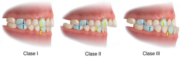 maloclusiones dentarias