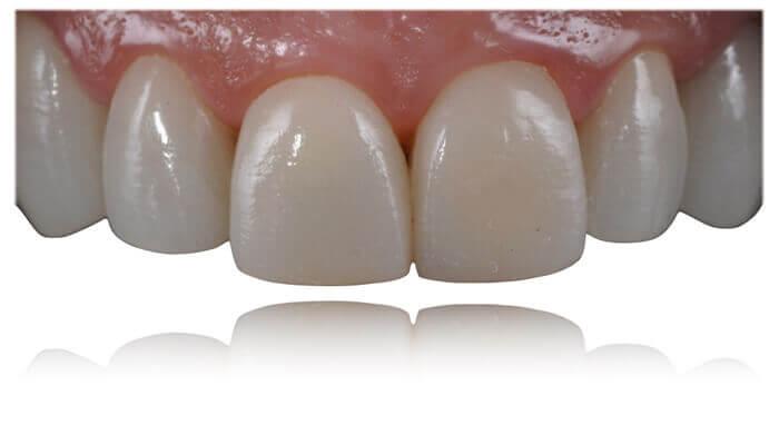 carillas dentales en santa coloma de gramenet