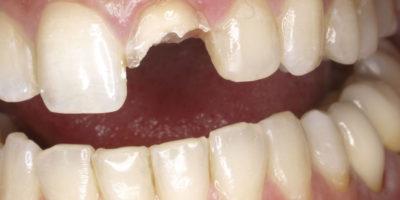 diente fracturado