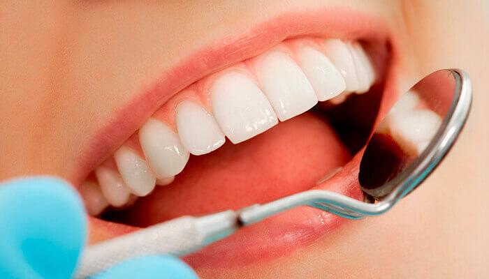 Fundas dentales precios