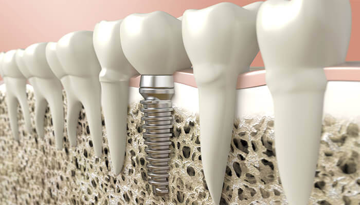 implantes dentales en santa coloma
