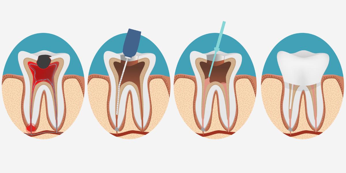 la endodoncia