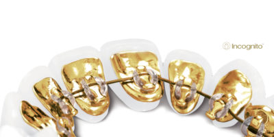 la ortodoncia lingual