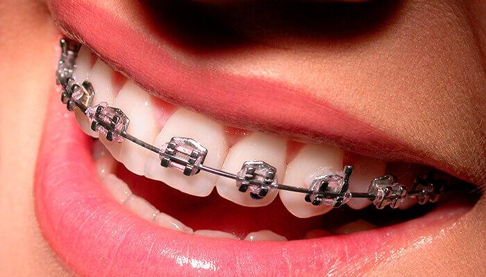 ortodoncia en santa coloma de gramenet