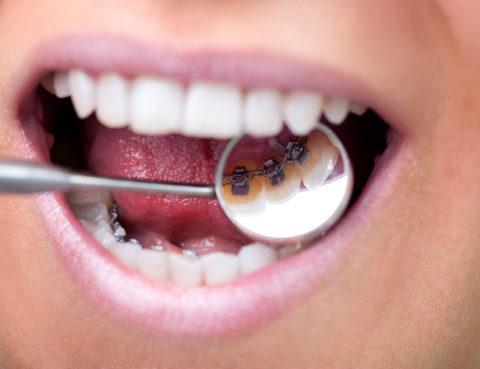 dentista en Santa Coloma de Gramenet