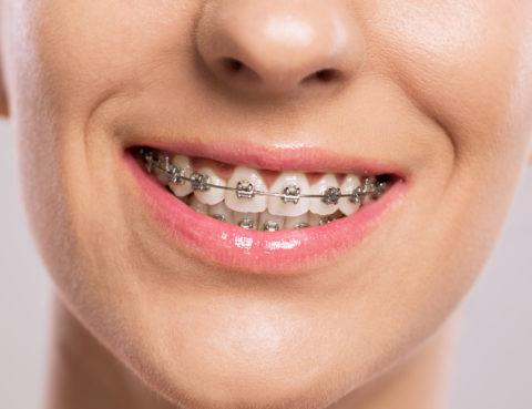 Beneficios de la ortodoncia