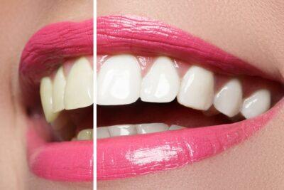 Blanqueamiento dental en Santa Coloma de Gramenet