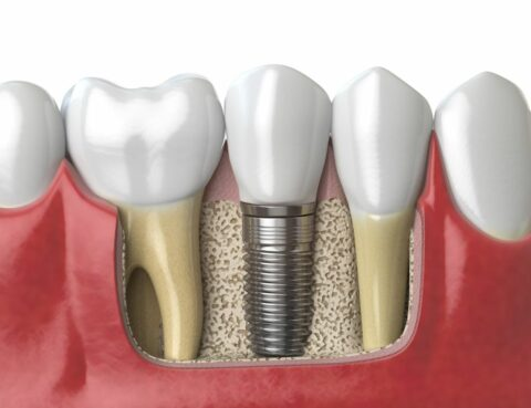 Mucositis periimplantaria implantes dentales en Santa Coloma de Gramenet