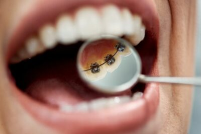 Ortodoncia lingual en Santa Coloma de Gramenet