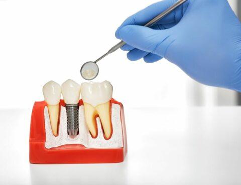 Implantes dentales Santa Coloma de Gramenet
